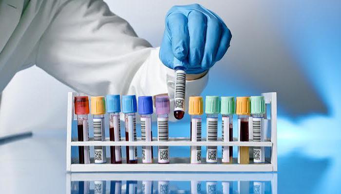 Тест на наркотики в Краснодаре в анонимной наркологической клинике.